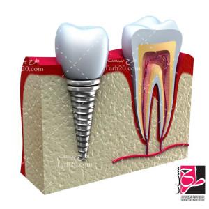 دانلود تصویر با کیفیت دندان سالم و دندان ایمپلنت