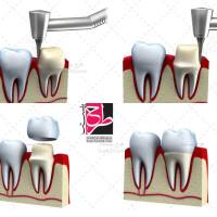 دانلود تصویر با کیفیت روکش دندان