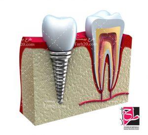 دندان ایمپلنت