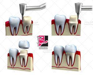 تصویر روکش دندان